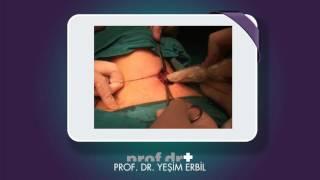 İşaretleme yöntemi ile paratiroid ameliyatı