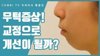 무턱증상 치아교정 치과에서는 어떻게 할까?
