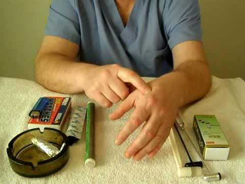 Лечение шейного остеохондроза: как лечить препаратами