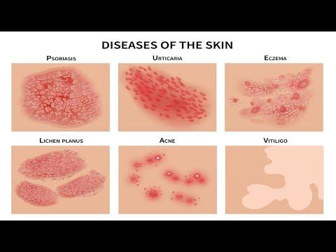 SAKIT sa BALAT: Pimples, Rushes, Eczema, Pigsa - ni Doc Katty Go (Dermatologist) #21b