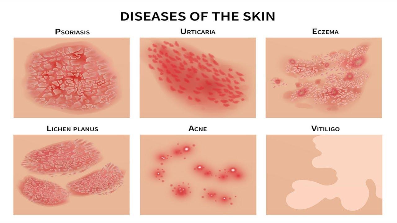 Download SAKIT sa BALAT: Pimples, Rushes, Eczema, Pigsa - ni Doc Katty Go (Dermatologist) #21b