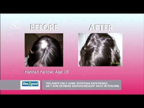 Natural Healthy Hair Growth From Viviscal Youtube