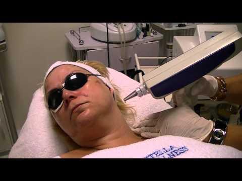 Pigment Laser behandeling