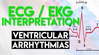 Ventricular Tachycardia and Ventricular Fibrillation.