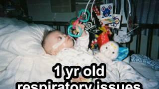 My Son Joe - Tetrasomy 8p + Mosaic Down Syndrome - Part 1 Disabled Medical/Life