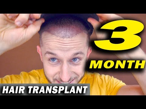 FUE Hair Transplant 3 Months post op Istanbul, Turkey