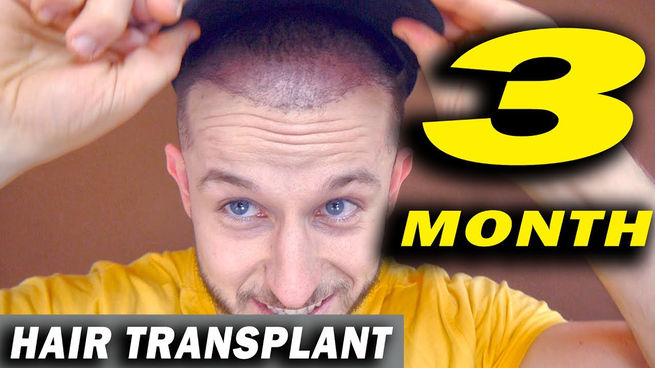 FUE Hair Transplant 3 Months post op Istanbul, Turkey - YouTube