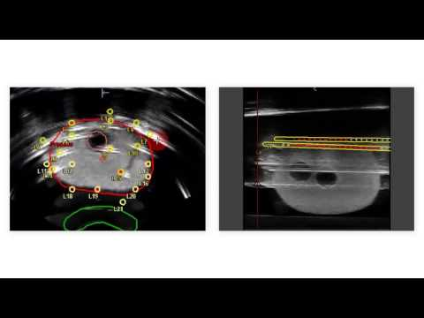 Real-time Prostate Solutions for treating prostate cancer with brachytherapy