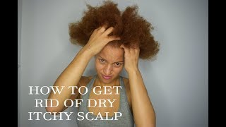 MY 4C WASH ROUTINE AND HOW TO: GET RID OF DRY SCALP