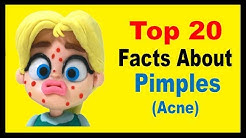 hqdefault - Interesting Information About Acne