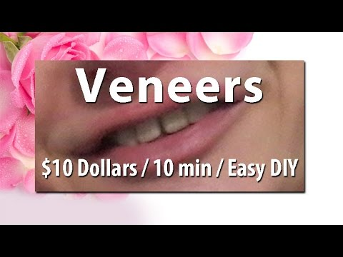 10 veneers diy at home cher in mini diy show youtube 10 veneers diy at home cher in mini diy show solutioingenieria Image collections