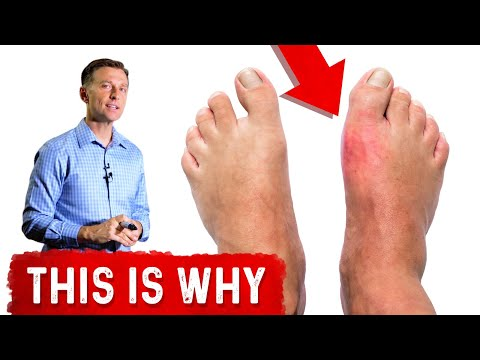 Why Do You Get Gout in Your Big Toe?