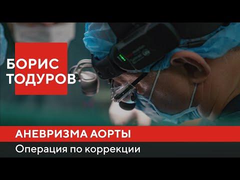 Операция по коррекции аневризмы восходящей аорты ► Борис Тодуров   Институт Сердца