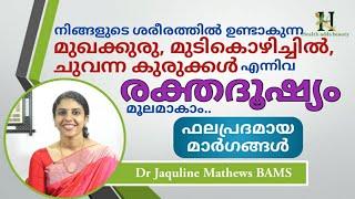 രക്തദൂഷ്യം നിങ്ങളുടെ ശരീരത്തെ എങ്ങനെയൊക്കെ ബാധിക്കുന്നു  Dr Jaquline