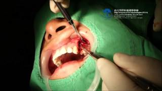 TCOI 當代植牙影音書宣傳影片