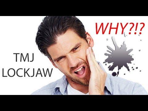 TMJ LOCKJAW?  Why?!