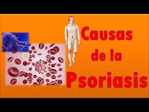 Psoriasis Causas y sintomas | Causas de la Psoriasis en la piel