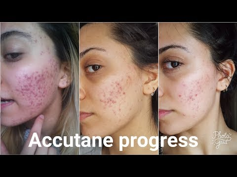 1 month on Accutane and skincare UK