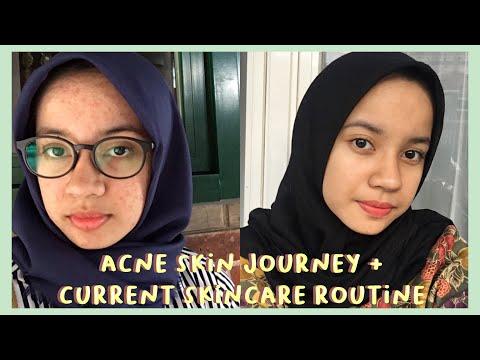 ✧ My Acne Skin Journey + Current Skin Care Routine // Twistedmilkyway [indonesia] ✧