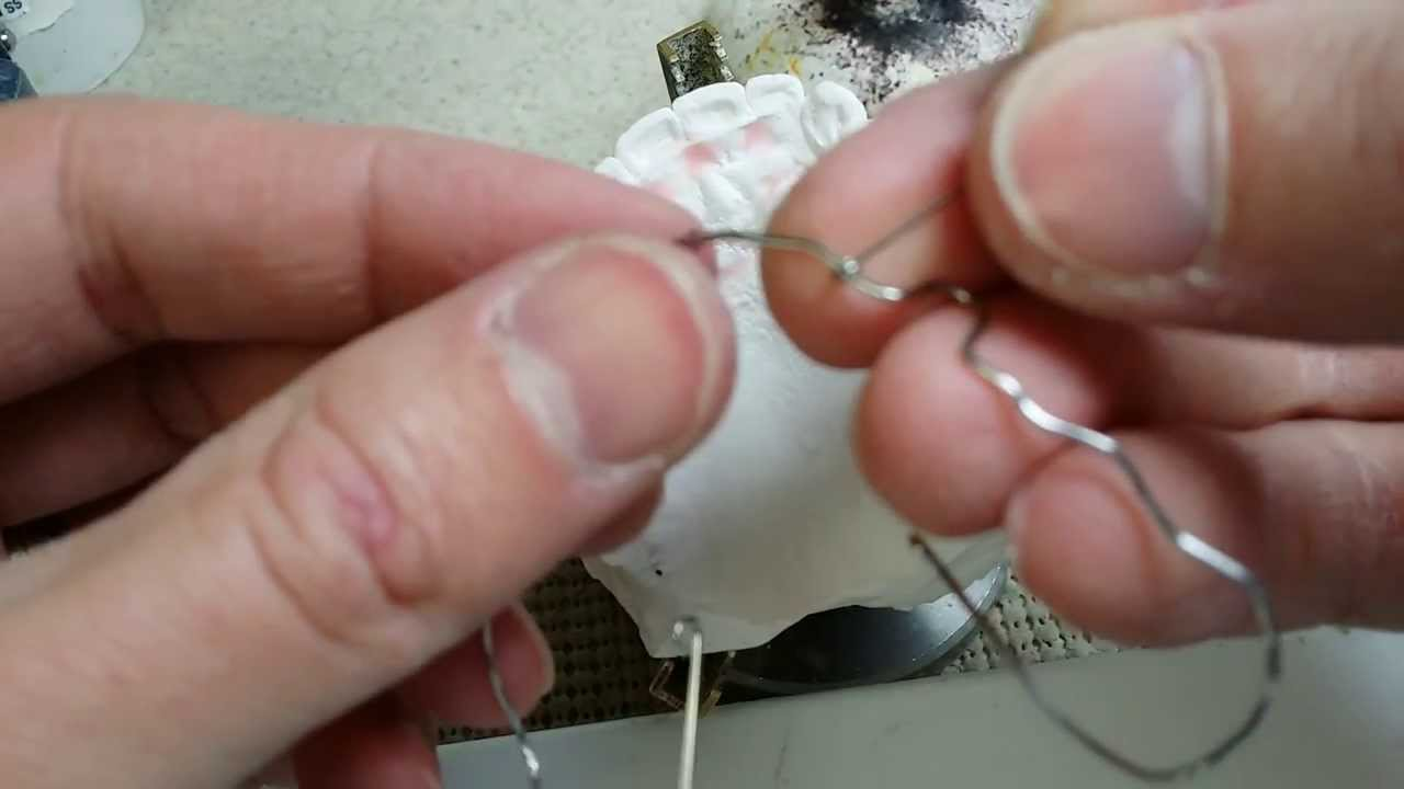 How To: Making the Wraparound Retainer Keeper Wires - Ortho Wire Podcast  Tips