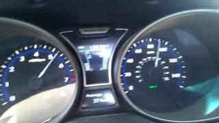 Hyundai veloster turbo full bolt ons sfr tuned