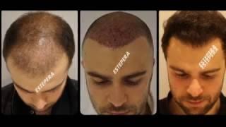 Injerto Capilar Técnica FUE-Trasplante Capilar Turquia-Clinica Estepera