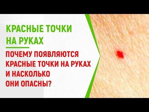 Почему появляются красные точки на руках и насколько они опасны?