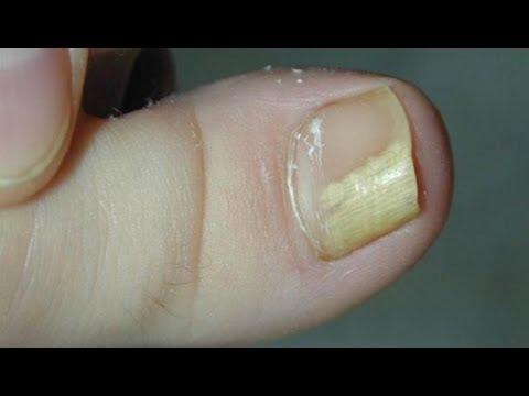 Почему ногти белеют на ногах