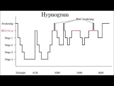 Sleep Stages - Awake, Stage N1, N2, N3, REM - Description & EEG Waveform.