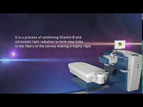 What Is Corneal Collagen Cross Linking?