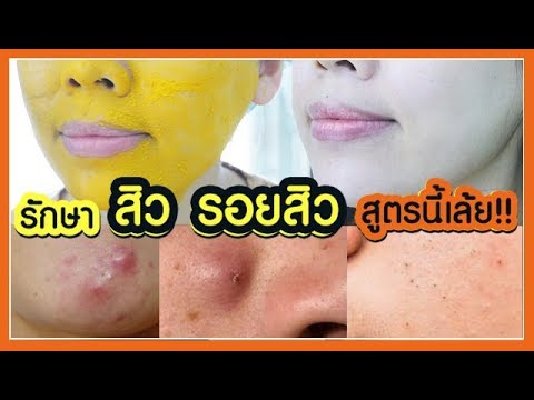 หน้าใสไร้สิว สูตรธรรมชาติทำง่าย - รักษาสิวอักเสป สิวผด สิวอุดตัน รอยสิว - Get rid of acne scar