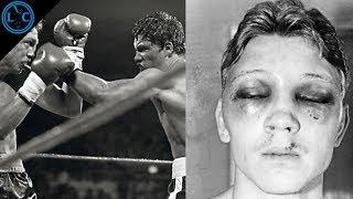 El Boxeador Que Usó Yeso En Sus Puños   Luis Resto vs Billy Collins Jr.