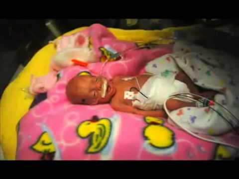 Ребенок родился на 23 неделе беременности