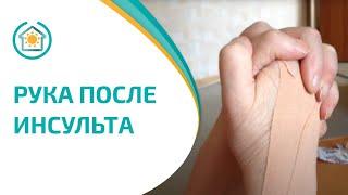 Реабилитолог Юрий Жидченко. Упражнения для руки после инсульта. Реабилитация. Рука после инсульта