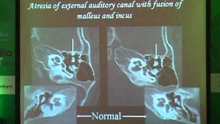 Radiological roadmap for auditory and middle ear anomalies - part 1
