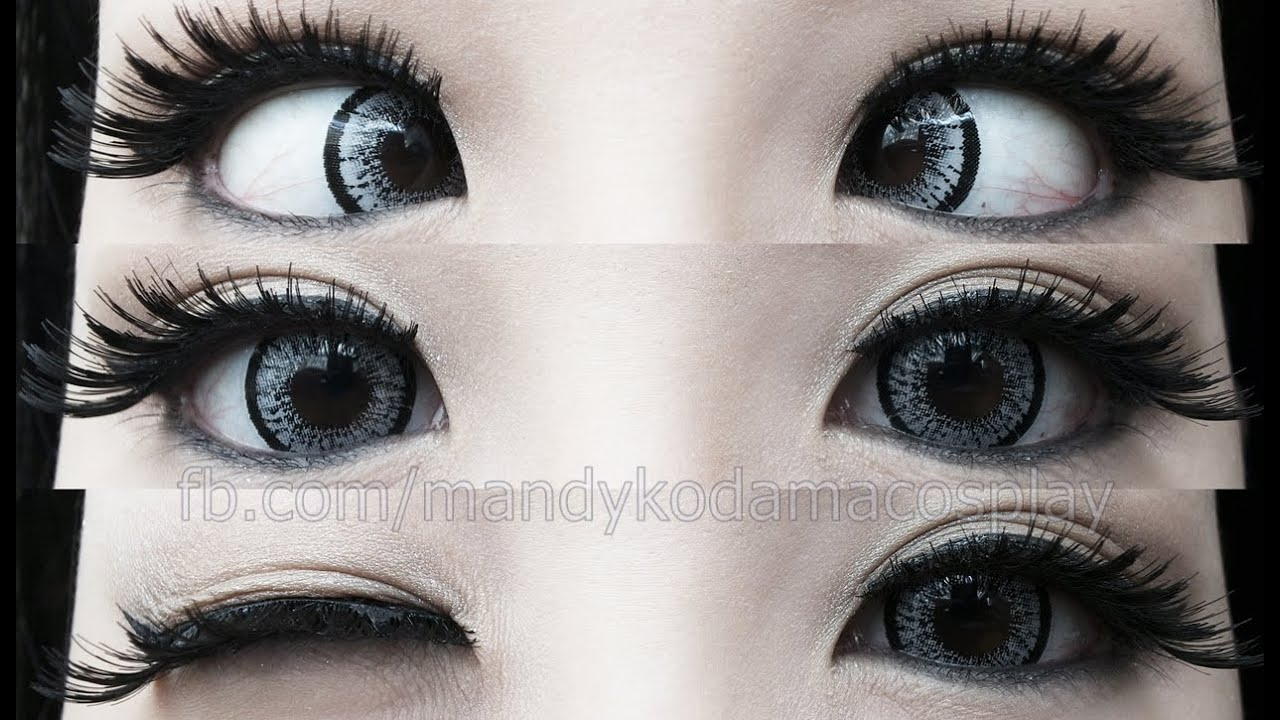 Limbal Ring Sign Of Health