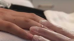 Премахване на брадавица на ръката с КриоПен-Лазер Клиник ПАРИЖ (Laser Clinic Paris)- гр. Варна