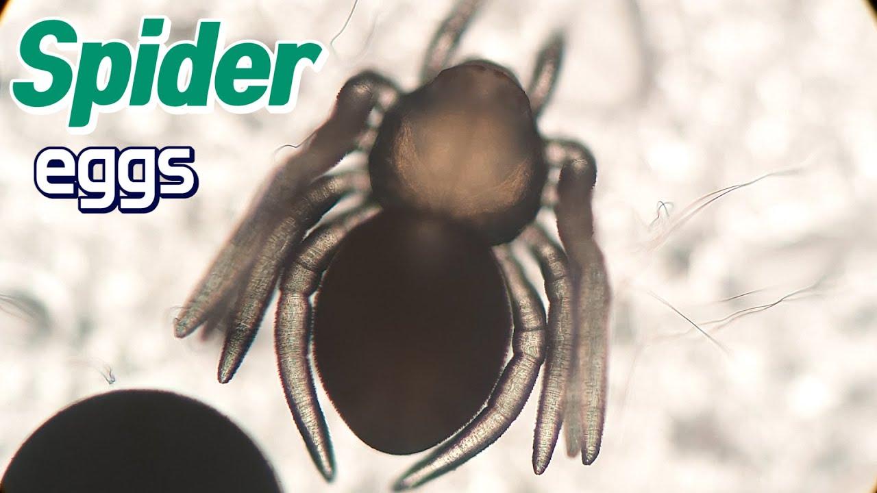 거미 알 주머니`알 주머니를 열어봤습니다` spider eggs