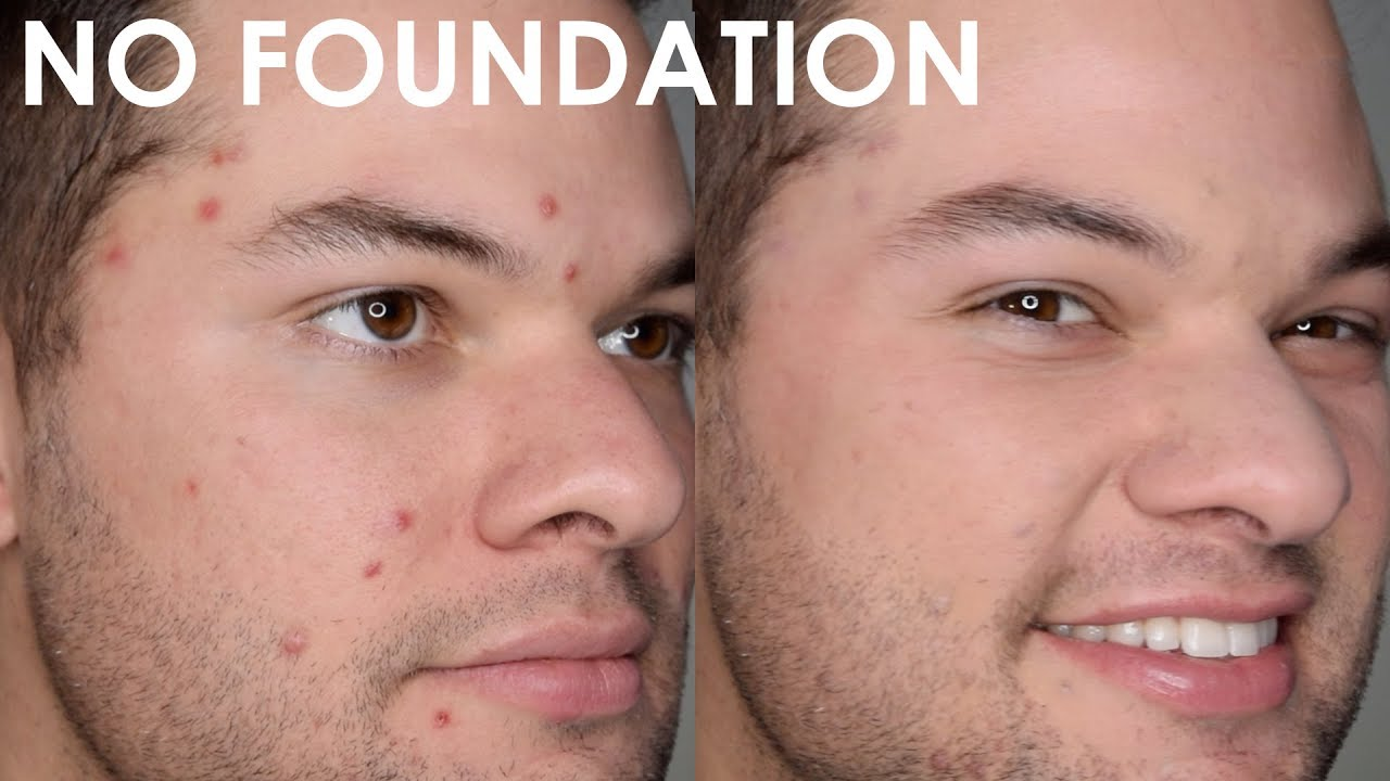 How To Cover A Pimple With Makeup For Men And Women Natural Looking Acne Coverage No Foundation Youtube