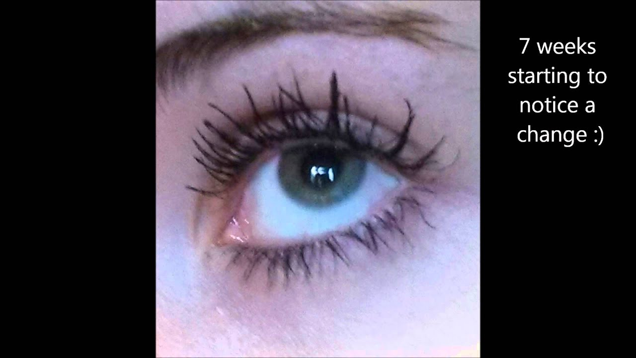 Careprost Review Generic Latisse How I Grew My Lashes Thick And