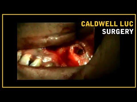 CALDWELL LUC SURGERY