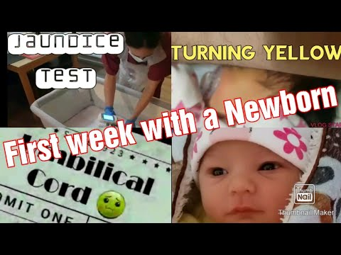 First Week with a Newborn Baby | Jaundice | Umbilical Cord |