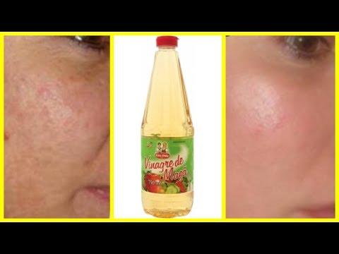 Como tirar manchas e reduzir as  rugas usando apenas vinagre de maçã!