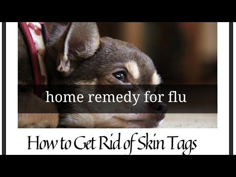 Home remedy for flu   How to Get Rid of Skin Tags