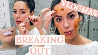 FULL SKINCARE REGIME FOR PARTY STRESSED SKIN #VLOGMAS | Beauty's Big Sister