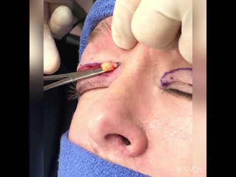 Upper Blepharoplasty Robb Facial Plastic Surgery
