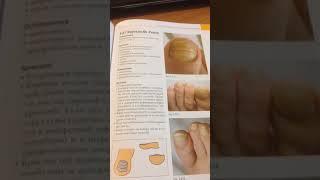 Обзор книги Большая книга заболеваний ногтей Анке Нидерау