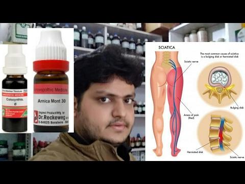 homeopathic medicine for treatment of sciatica?? explain!