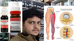 homeopathic medicine for treatment of sciatica?? explain!