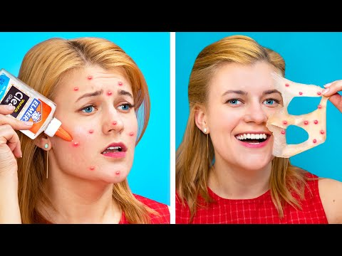 Weird Ways to Get Rid of Pimples / 18 Funny Hacks